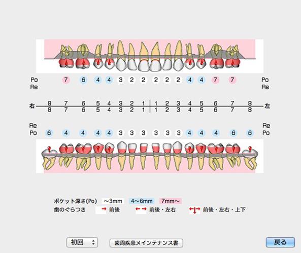 歯周病チェックシート
